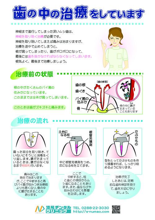 歯の中の治療、根管治療